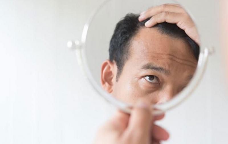 alopecia.jpg