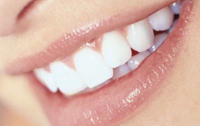 dientes1.jpg