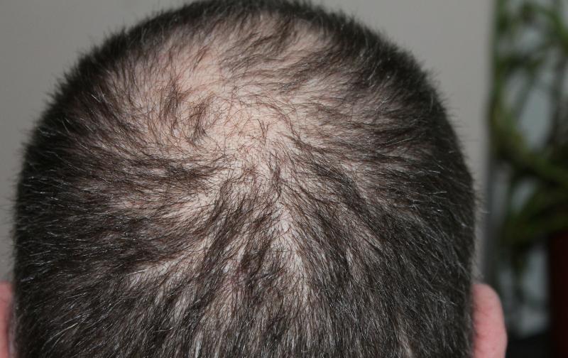 hair-248049_1920.jpg