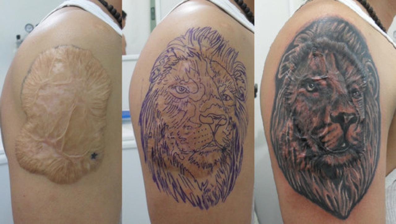 Exitosa Experiencia De Tatuajes Que Borran Cicatrices Lifestyle De